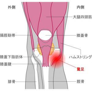 関節外の膝の痛み